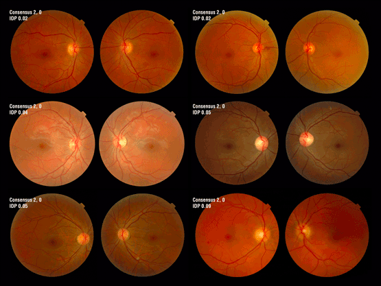 Digital Retinal Imaging